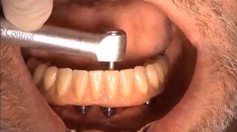 Tilting implants and immediate loading full mouth Rehabilitation